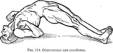 столбняк  - вид болного при столбняке - диагностика