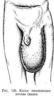 пахоая мошоночная грыжи животавыпячивание хирург лечение