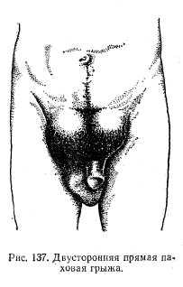 грыжи животавыпячивание хирург лечение операция вправление
